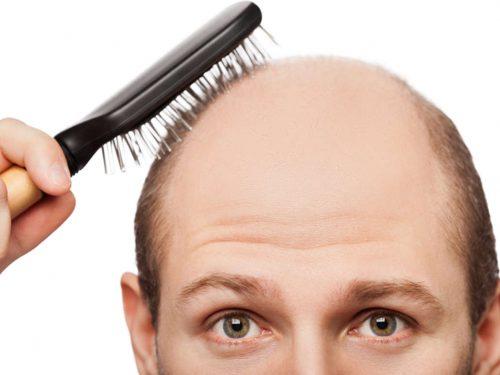 أفضل منتج بريطاني لإنبات الشعر و علاج الصلع