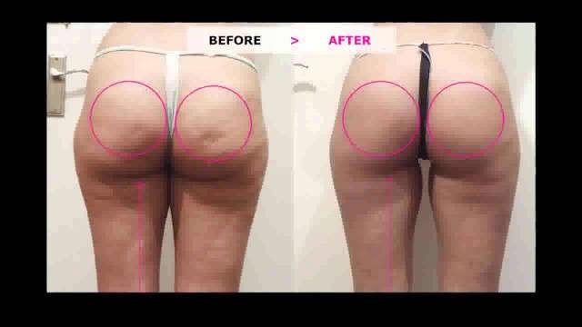 صورة قبل و بعد علاج السيلوليت و التخلص بالكريم