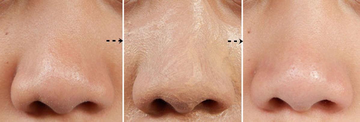علاج مسامات واسعة في الوجه Revitol