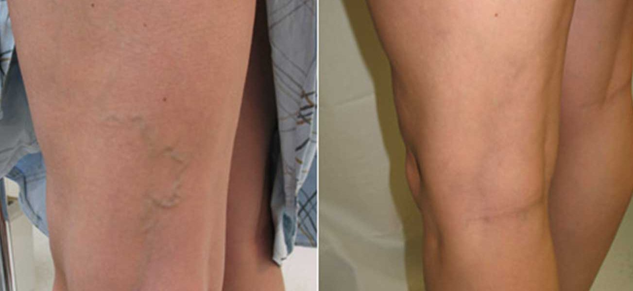 قبل-و-بعد-2-لعلاج-الدوالي-صور