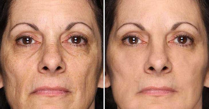 قبل و بعد Revitol Anti Aging على العنق لعلاج الWrinkles