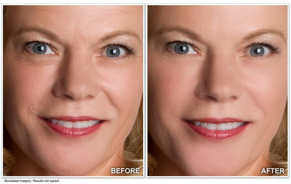 قبل و بعد Revitol Anti Aging