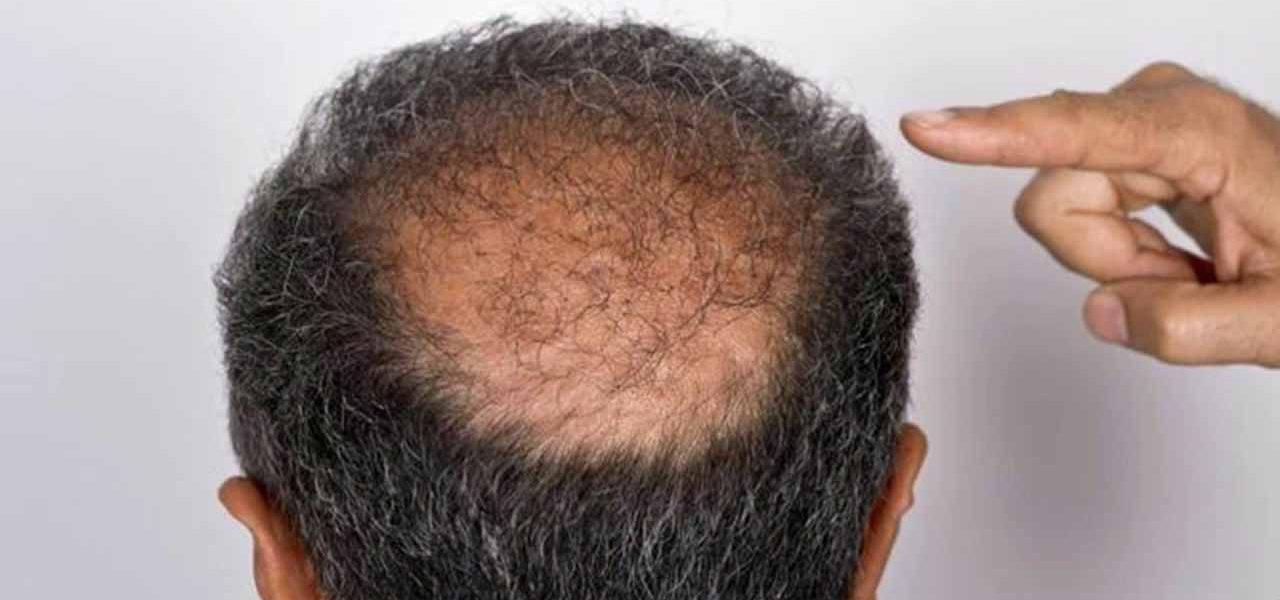 كيفية تكثيف الشعر للأصلع