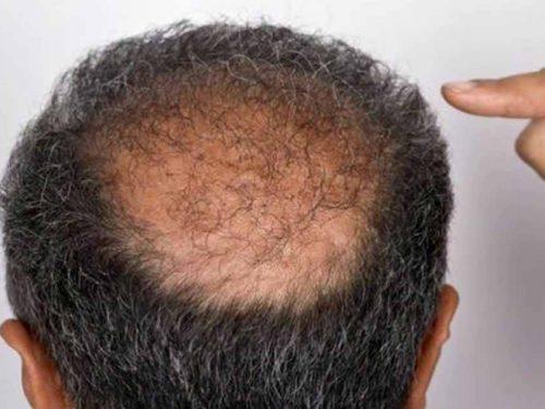 5 نصائح لا تفوتهم لإعادة كثافة الشعر حتى لو كنت تعاني من الصلع