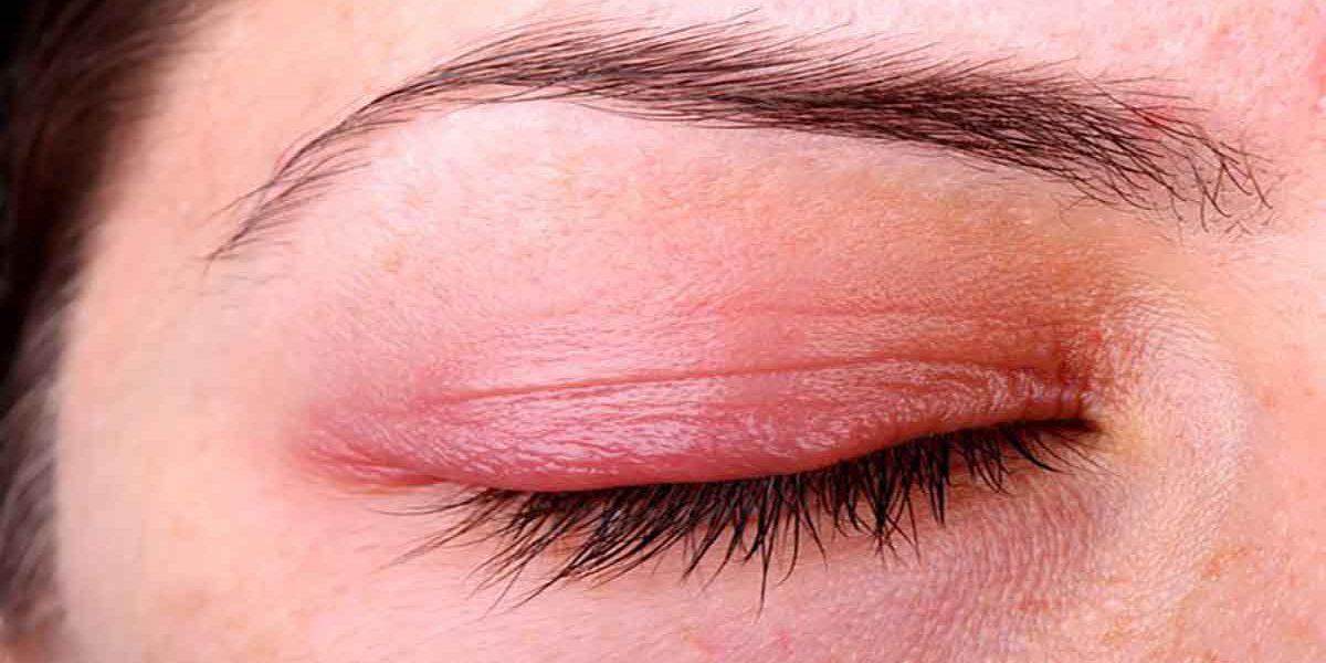 كيفية علاج التهاب الجفن في العين