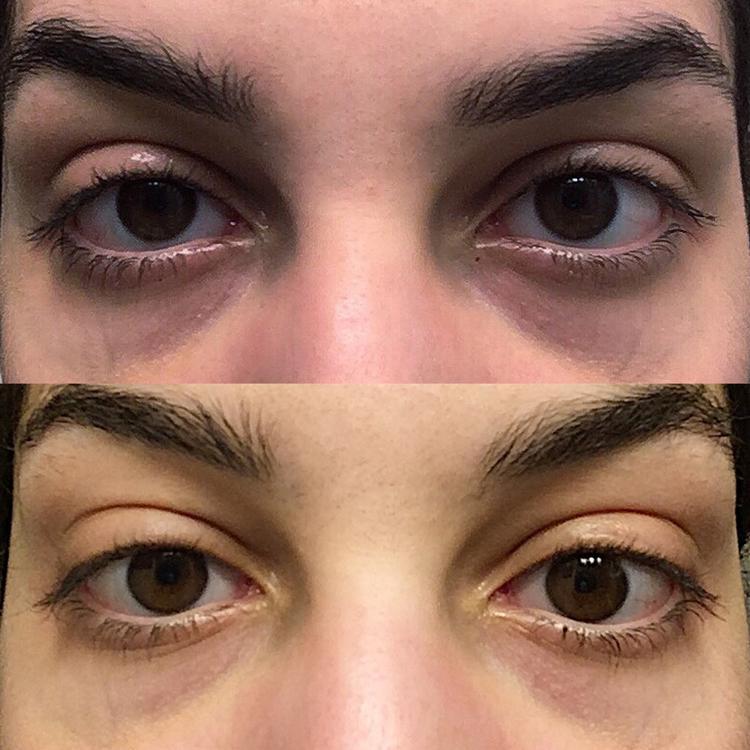 نتائج سيروم لعلاج انتفاخ العين