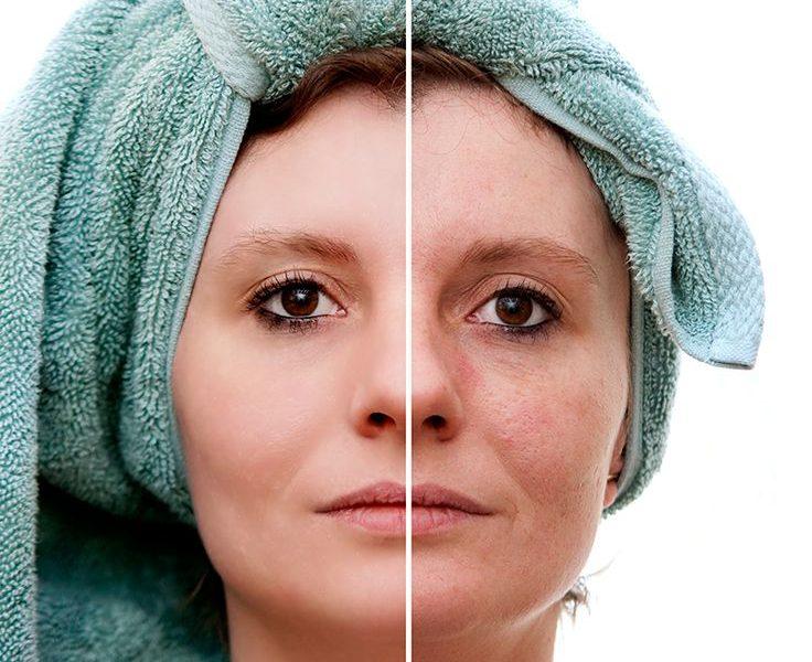 استخدام حقن تبيض الوجه