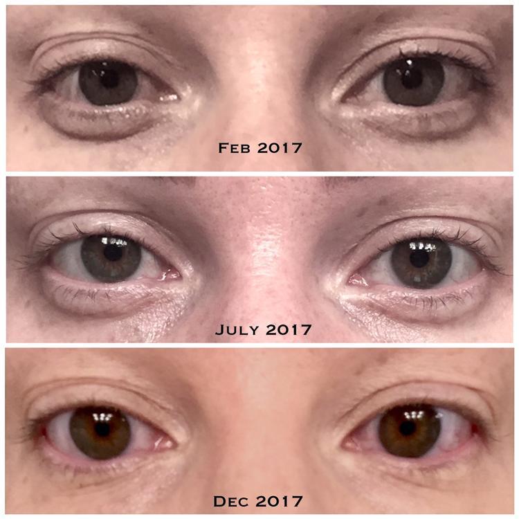 قبل و بعد السيروم لعلاج التجاعيد و العين