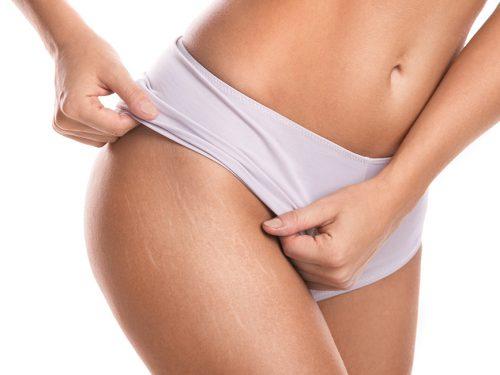 أفضل 10 وسائل تساعدك للتخلص من الخطوط البيضاء أثناء الحمل