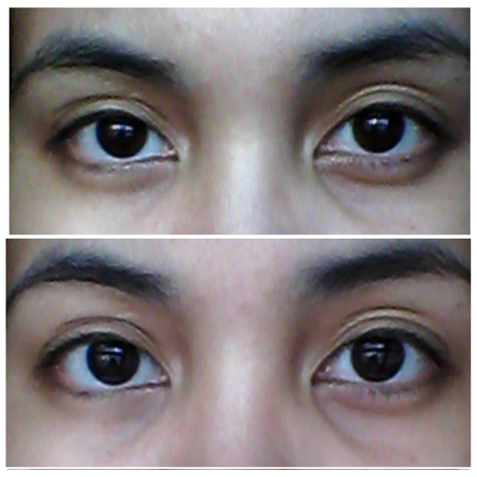 قبل-و-بعد-استخدام-كريم-العين