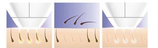 نتائج العلاج بالليزر لازالة الشعر في المنزل
